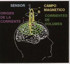 Resultado de imagen de cristales en el cerebro
