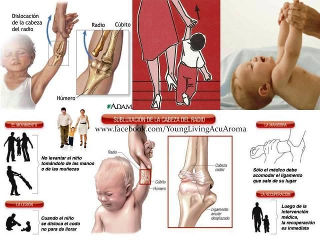 Dislocación del codo en los niños
